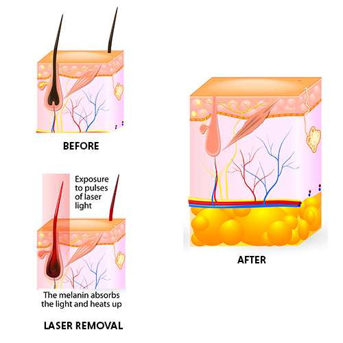 Permanent Laser Hair Removal Treatment In Chennai Oliva Clinic