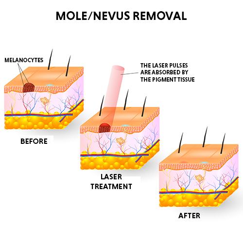 moles removal treatment
