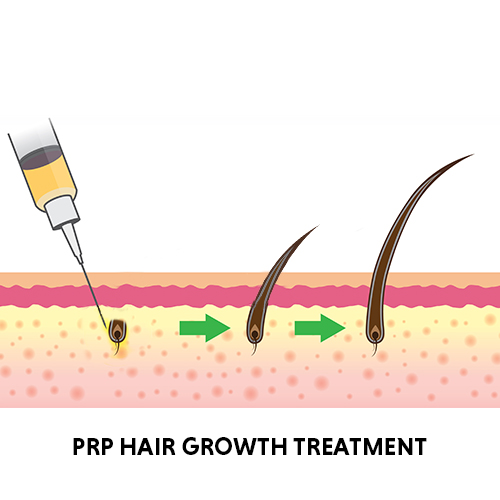 prp hair regrowth treatment