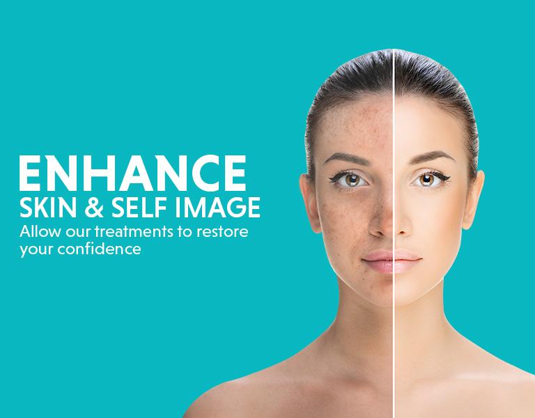 face pigmentation treatment