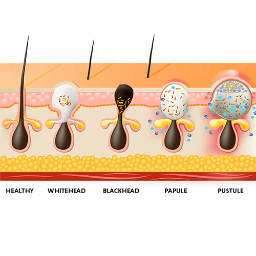 types of acne/pimples