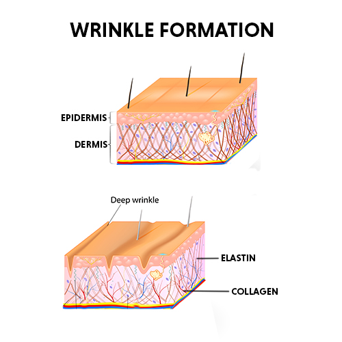 wrinkles treatment