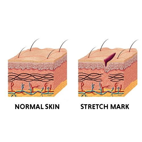 stretch marks removal