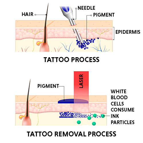 tattoo removal process
