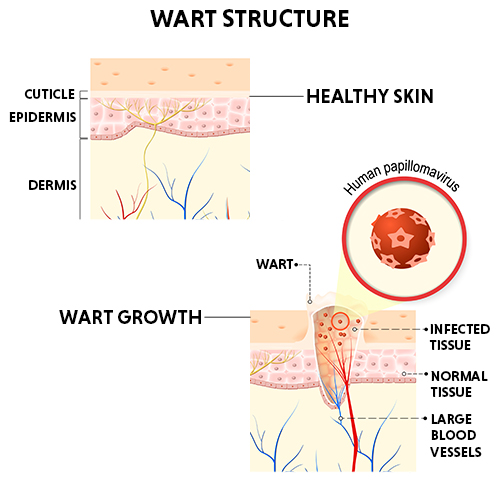 warts structure