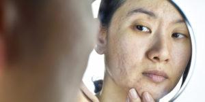 acne holes