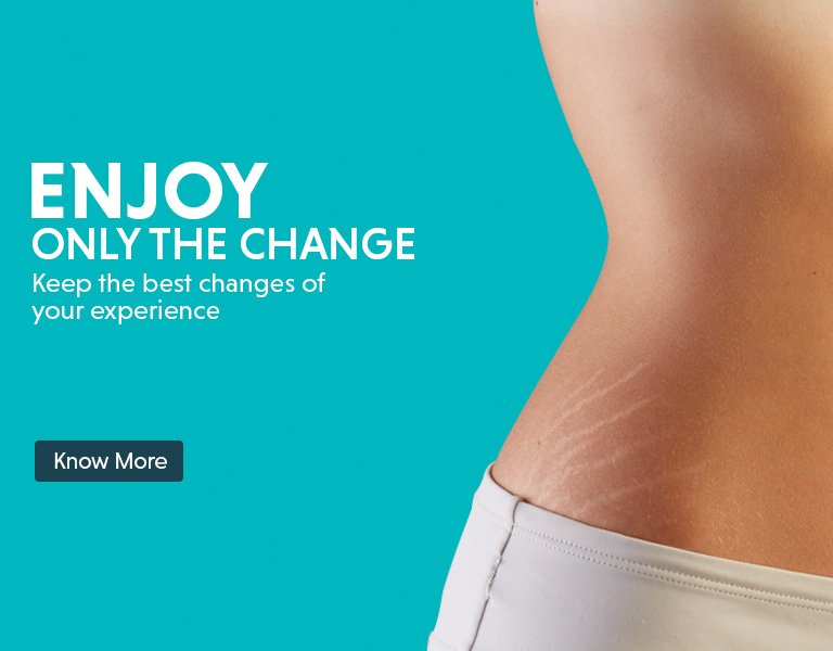 stretch marks removal treatment