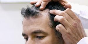 alopecia totalis