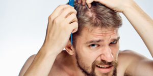 protein deficiency and hair loss
