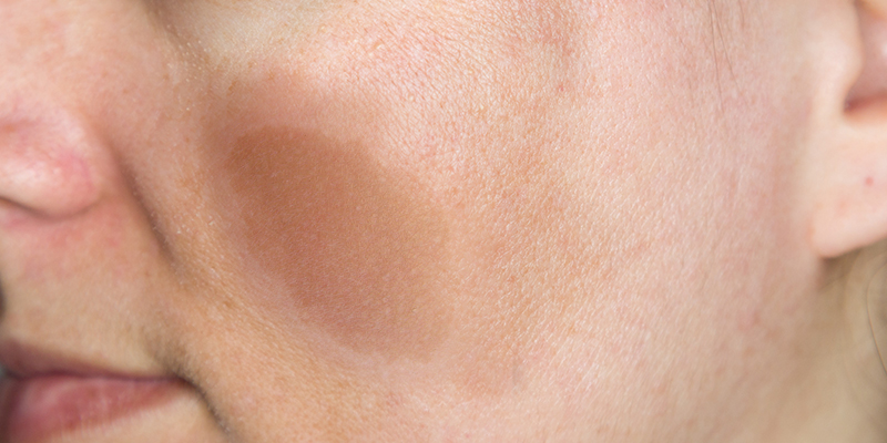 What Are Cafe Au Lait Spots And How To Treat Them