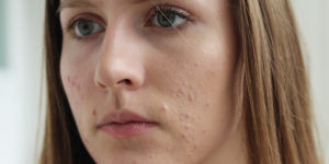 isotretinoin for acne