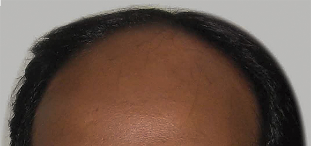 Before and after results of hair treatment