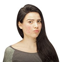 pimple/acne treatment
