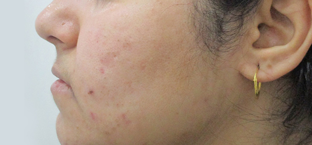 Before and after results of pimple treatment