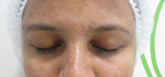 Before and after results of pigmentation treatment