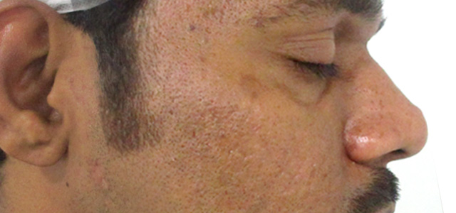 Before and after results of acne scar treatment