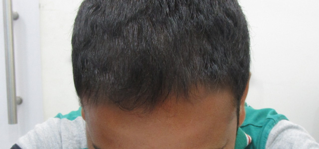 Before and after results of prp hair treatment