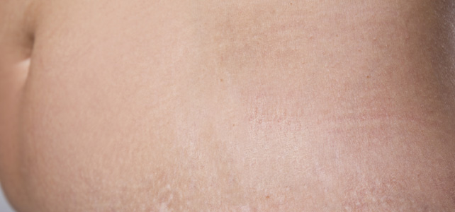 before and after results of stretch marks treatment