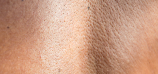 before and after results of moles removal