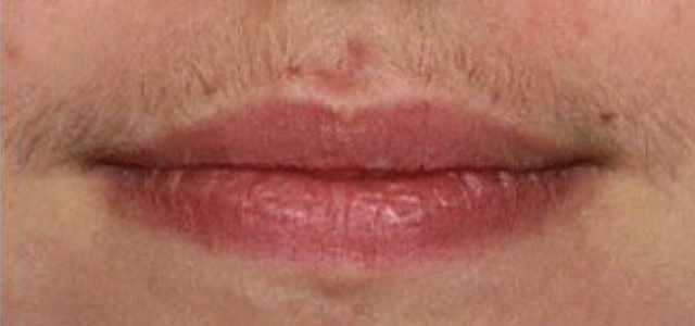 facial laser hair removal results