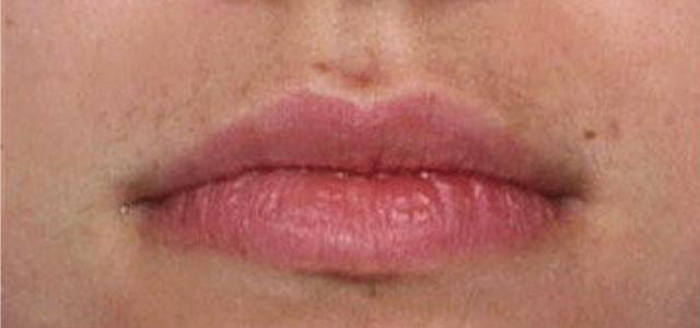 laser facial hair removal results