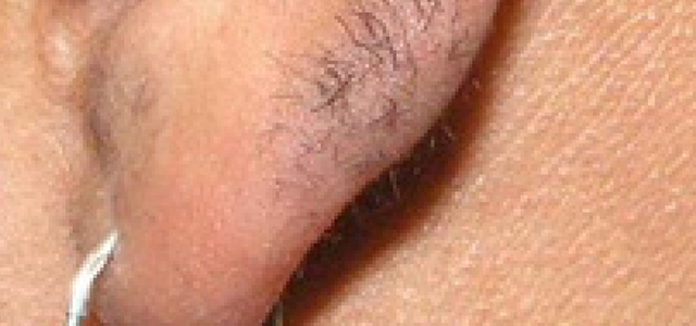 laser upper lip hair removal results