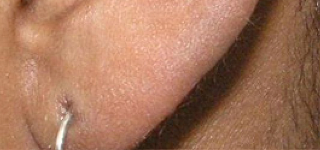 Before and after results of laser upper lip hair removal