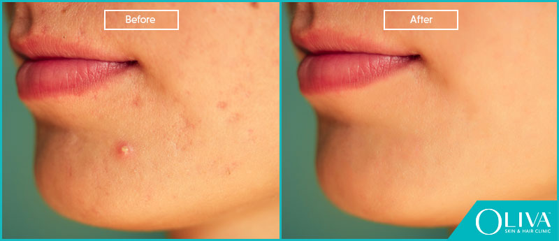 zits before and after