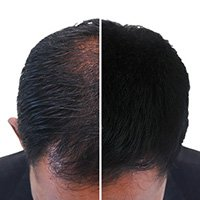prp treatment for hair fall and hair loss