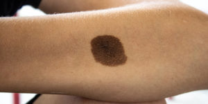 Melanocytic Nevus