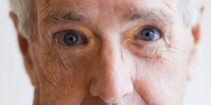 Xanthelasma Palpebrarum Pictures