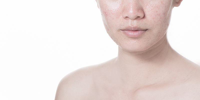 What Are Sebaceous Glands