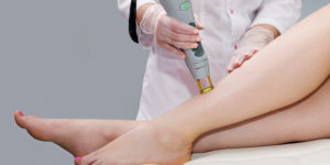 Is laser hair removal permanent