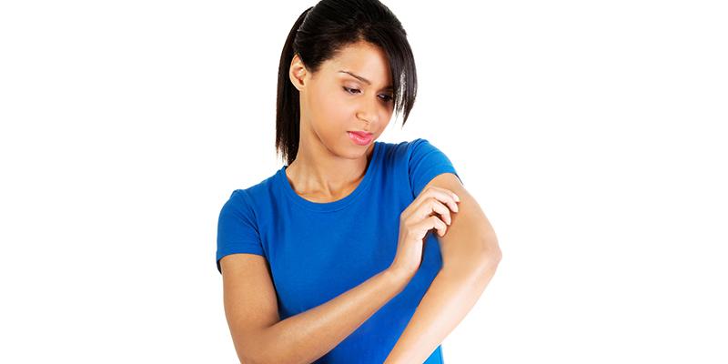 Vaccine Scars