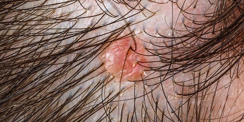 bumps on scalp