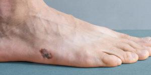 Acral lentiginous melanoma