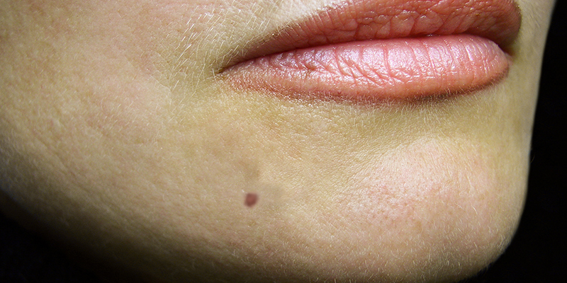 How to remove moles from face permanently