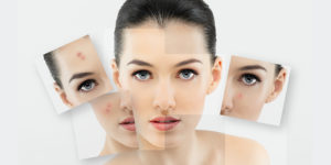 Pimple And Acne Scar Removal Treatment In Kochi