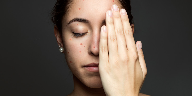 Chicken Pox Scars Removal In India - Treatment Procedures & Cost