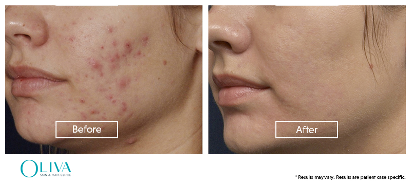 before and after pimple acne scar