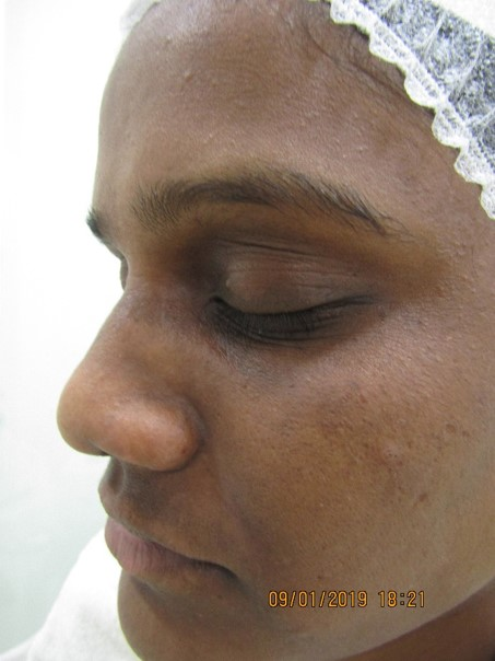 Skin Whitening After Treatment