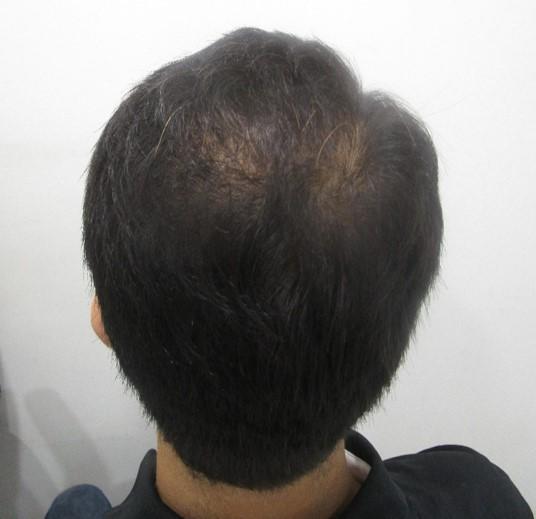 Aditya PRP Hair Treatment Before