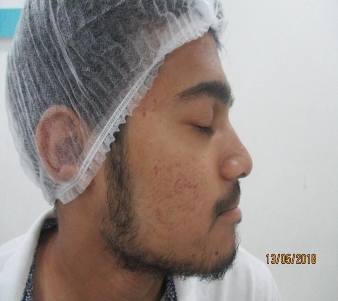 Atifuddin Siddqui After