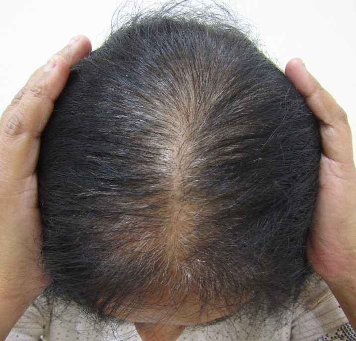 Baby Ravi Before PRP Hair Treatment