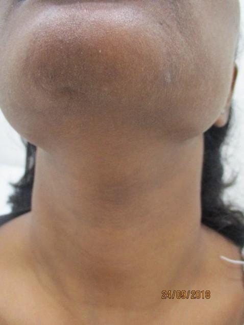 Dark neck After Treatment