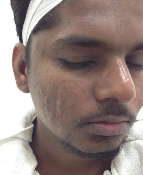 Gopinath After