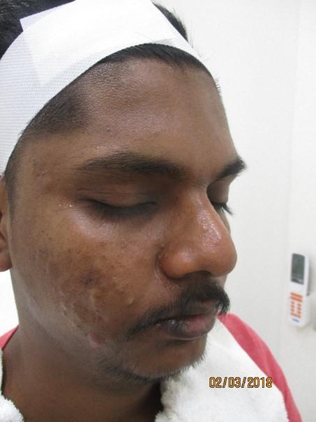 Gopinath Before