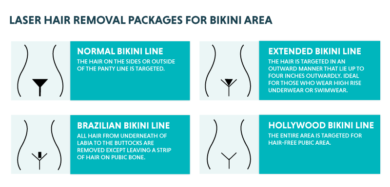Laser Bikini Hair Removal Benefits Results And Risks