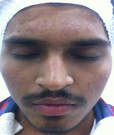 Madhav After