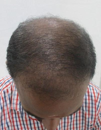 Muthukumaran Before PRP hair treatment photo